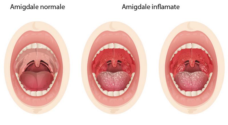 la ORL: despre amigdale, prima linie de aparare impotriva infectiilor